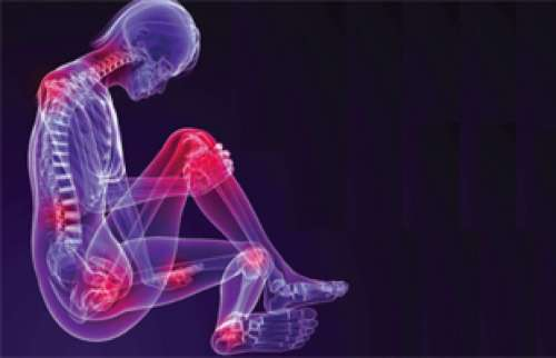 chikungunya - joint pain and fever