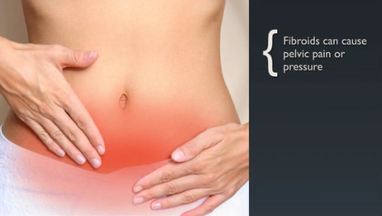 Fibroids courtesy of gigarelifestyle-com