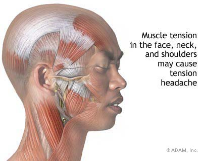 muscle tension in the neck - image courtesy of nytimes-com